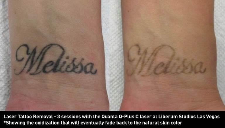 635964424220277802-1778037748_laser-tattoo-removal-las-vegas-liberum-studios-k-shearer-l-wrists-1024x585